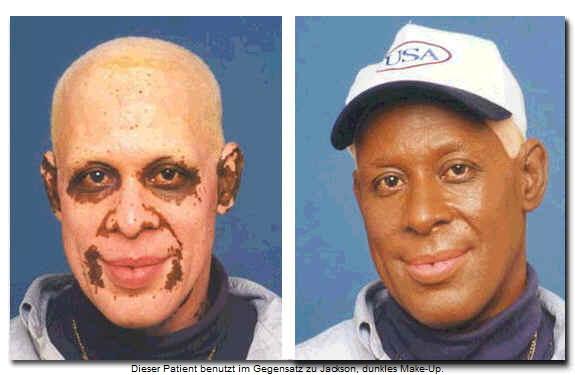 vitiligo2
